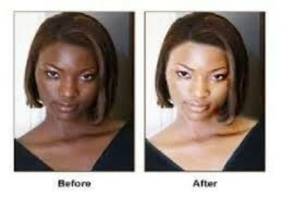 Permanent Skin Lightening Or Black Spots Removal +27780597608