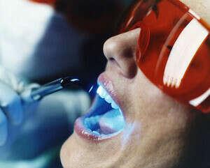 Укрепить эмаль зубов процедурами