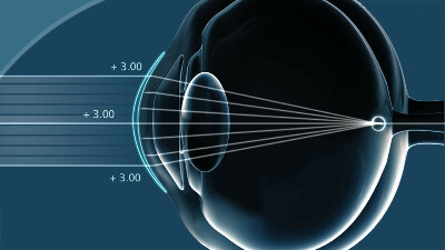 коррекцию зрения