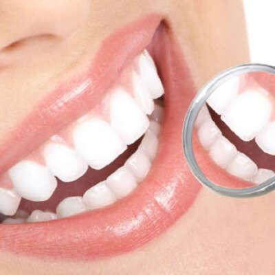 Здоровые, белые, красивые зубы и обворожительную улыбку