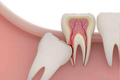 Удалить зубы мудрости