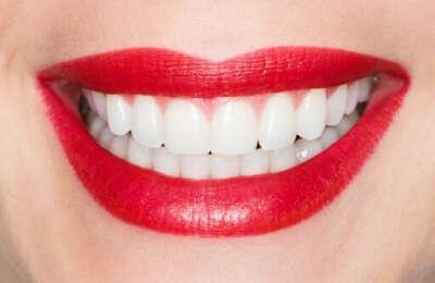 хочу идеальные зубки !