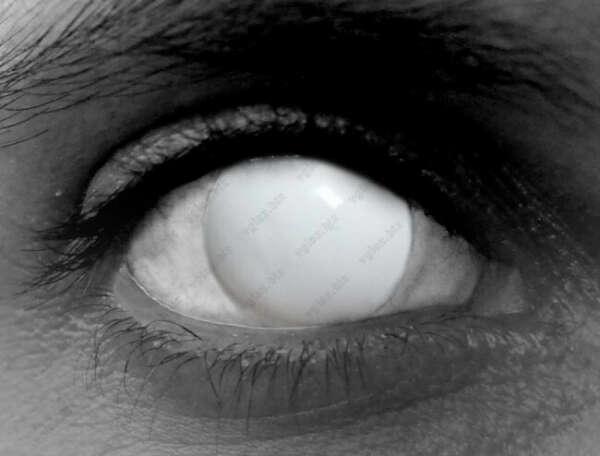 Склеральные белые линзы, скрывающие зрачок