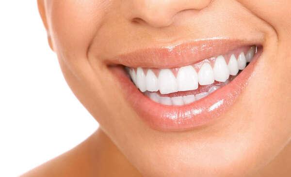 Ровные белые зубы