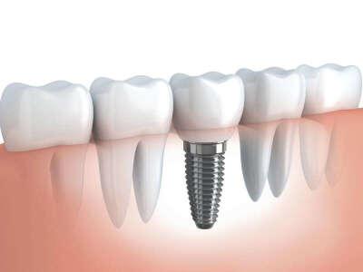 Имплантировать зуб