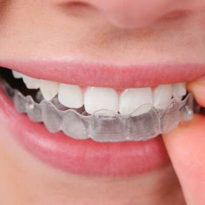 сделать выравнивание зубов