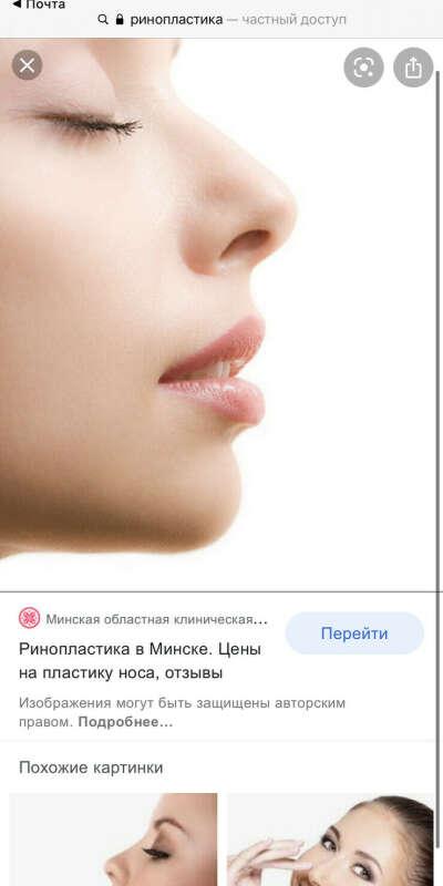 Хочу красивый нос
