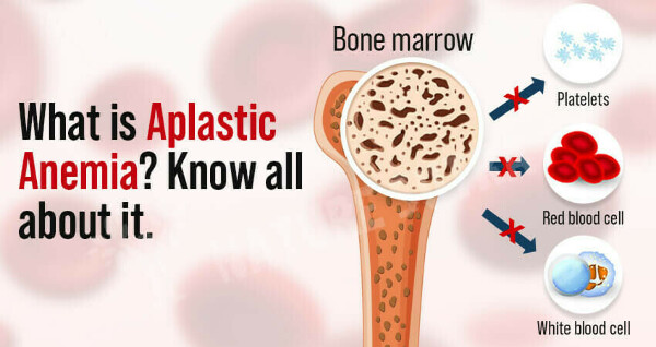 Aplastic Anemia: Definitions, Symptoms, Causes, and Treatment