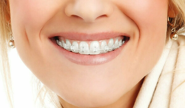Выровнять зубки