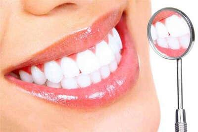 Профессиональная чистка и отбеливание зубов