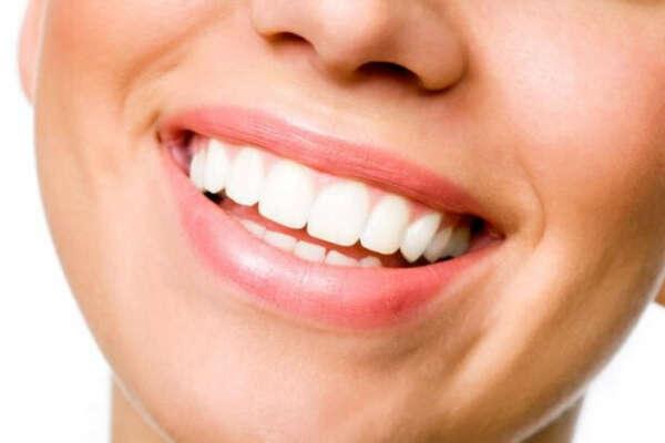 Выпрямить и отбелить зубы