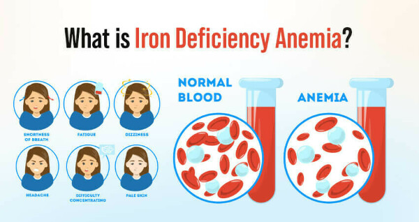 Iron Deficiency Anemia: Symptoms, Causes, and Treatment - Nature Sutra
