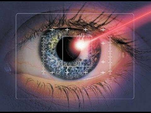 Лазерную коррекцию зрения