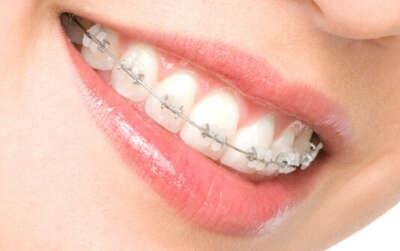 Выпрямить зубы