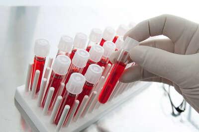 Узнать свою группу крови